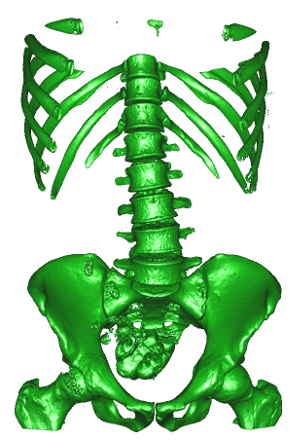 Surface mesh extracted from a large abdominal CT scan.